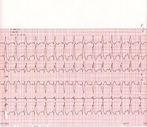 Electrocardiography (ECG) and Holter/Event Monitors